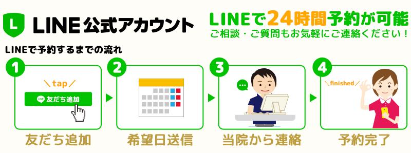 LINE公式アカウント LINEで24時間予約可能